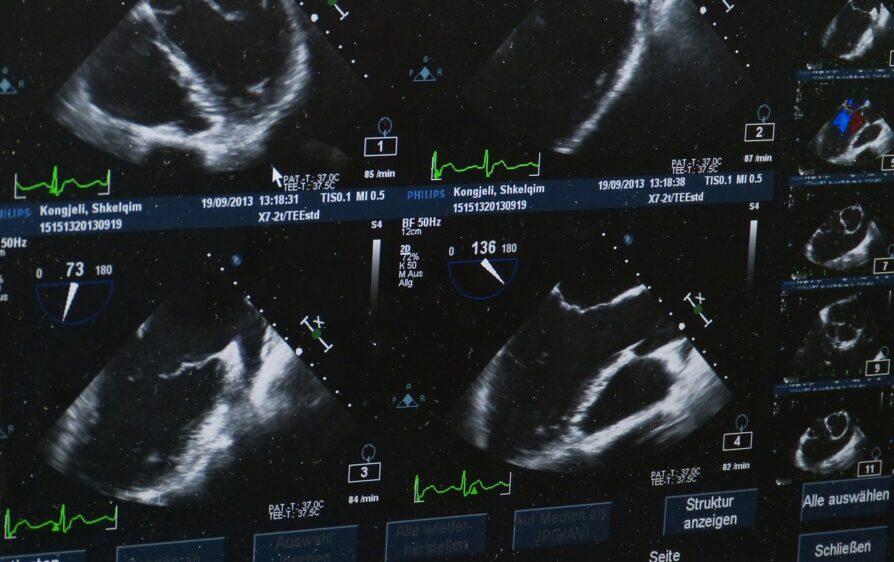 Badania USG w 13 tygodniu ciąży
